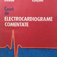CAIET DE ELECTROCARDIOGRAME COMENTATE - C. Zeana, G. Tatu Chitoiu - Carte Cardiologie